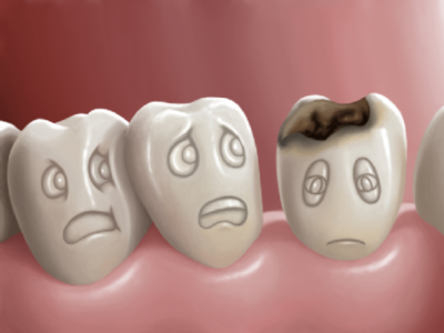 Как в домашних условиях убрать кариес с зубов — Болезни полости рта