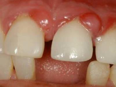 Гранулема зуба - эффективные способы лечения