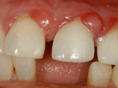 Гранулема на корне зуба лечится или нет