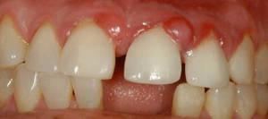 Гранулема зуба - что это такое