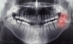 Снимок гранулемы зуба - рентген