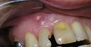Гранулема зуба - заболевания стоматологические