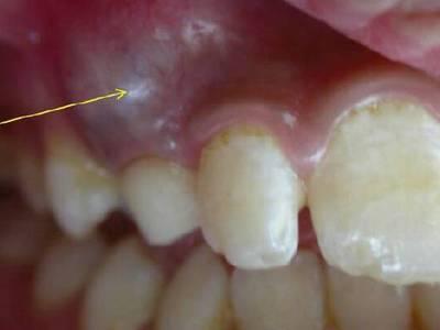 Удаление кисты зуба, удаление зуба с кистой на корне (фото и видео)