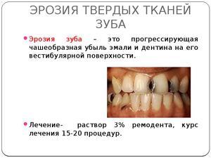 Признаки эрозии эмали зубов