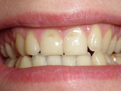 Эрозия эмали на зубах: виды, причины и лечение