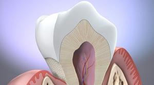 Причины заболевания эрозии эмали зубов