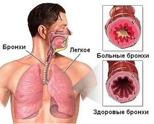 Бронхит-причина запаха изо рта