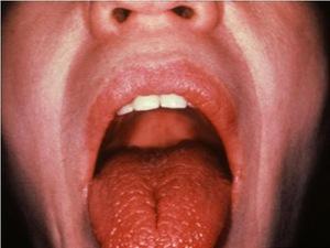 Ксеростомия-причина запаха изо рта