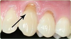 Оголение основания зуба