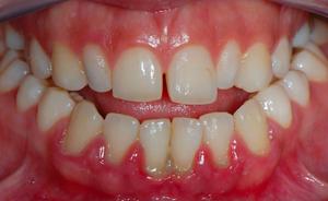 Описание заболевания дёсен и зубов пародонтита