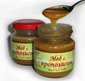 Применение мёда с прополисом для лечения пародонтита