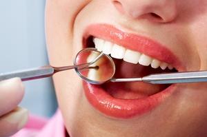 Гнойная гранулема зуба-лечение
