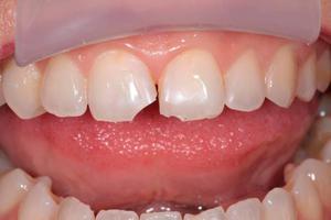 Боль в зубе может быть из-за скола зуба