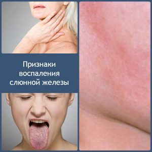 Метод лечения воспаления слюнной железы