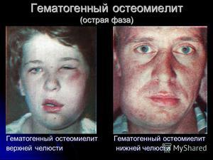 Гематогенный остеомиелит-симптомы