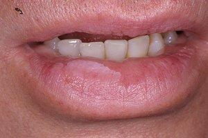 Лейкоплакия слизистой оболочки полости рта: лейкоплакия полости рта лечение