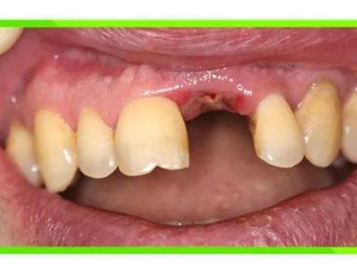 если не образовался кровяной сгусток после удаления зуба собраны все