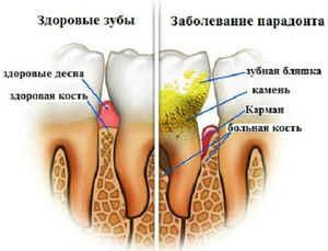 Как убрать зубной камень ультразвуком
