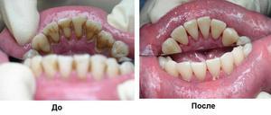 Как избавится от камней на зубах