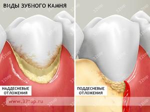Вид зубного камня
