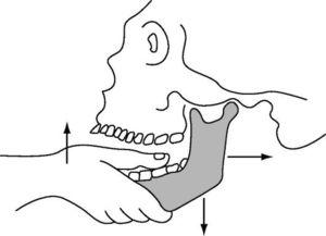 Как происходит вправления челюсти