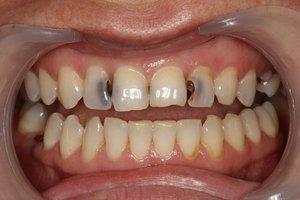 Причины воспаления слизистой полости рта и дёсен