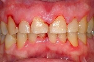 Симптомы воспалений слизистой полости рта
