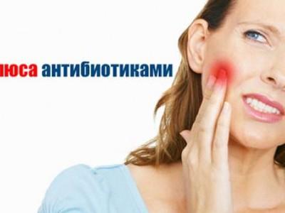 Антибиотики при зубном флюсе