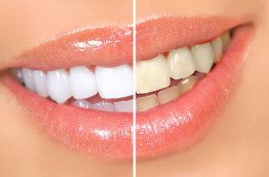 Результаты после полоскания рта перекисью водорода