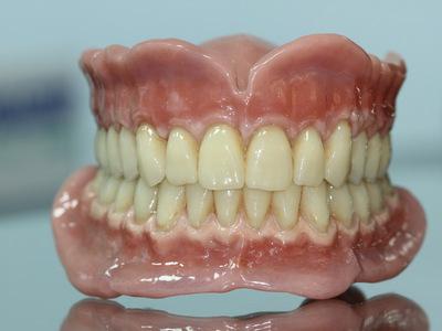 Зубные протезы на присосках - на один или несколько зубов: фото, виды, цены