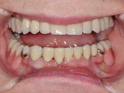 Виды преимущества и недостатки бюгельного протезирования на верхнюю челюсть