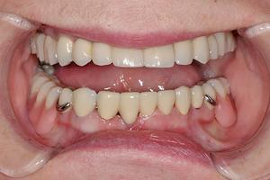 Особенности бюгельного протезирования зубов