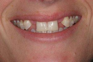 Показания для бюгельного протезирования зубов