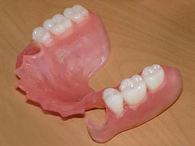 Частичный съемный зубной протез на верхнюю и нижнюю челюсть, цены в Москве, фото