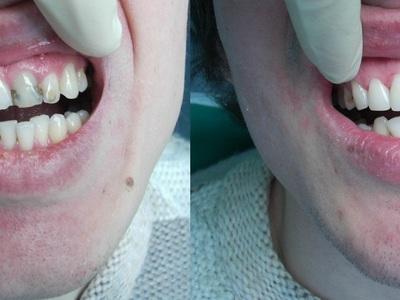 Наращивание зубов что это такое