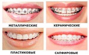 Брекеты на зубах верхней и нижней челюсти