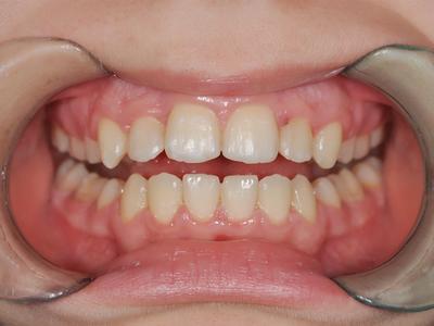 Выравнивание зубов без брекетов у взрослых и детей