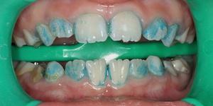 Как вылечить зубы от черного наета