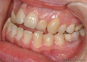 Мезиальный прикус — это патология в зубочелюстной системе