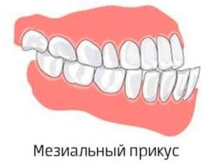 Мезиальный прикус — патология в зубочелюстной системе