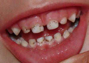 Причины налета на зубах