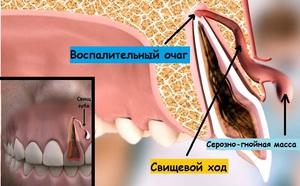 Как лечить свищ на десне