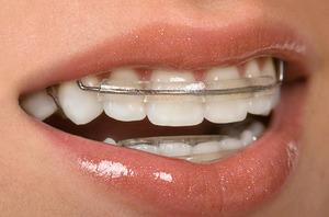 Фото скобы на зубы