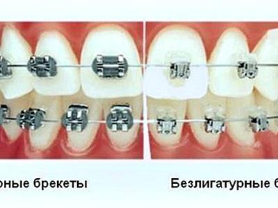 Брекеты лигатурные и безлигатурные — фото зубных конструкций