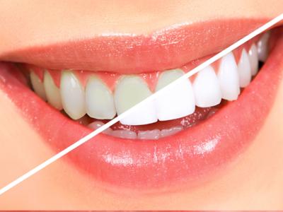 Отбеливание зубов с помощью перекиси