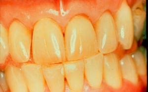 Если зубы пожелтели от курения или продуктов, можно вернуть им белизну