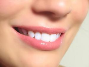 После отбеливания постарайтесь устранить факторы, которые привели к потемнению зубов