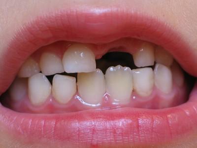 Последовательность смены молочных зубов на постоянные