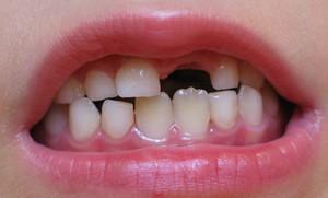 Когда происходит смена зубов
