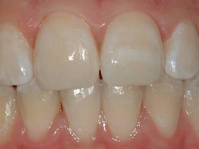 Гипоплазия зубной эмали разновидности и методы лечения